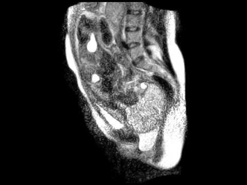 Процесс рождения ребенка впервые засняли на видео с помощью томографии