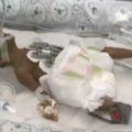 Ребёнок выжил чудесным образом после самопроизвольного аборта в 23 недели беременности