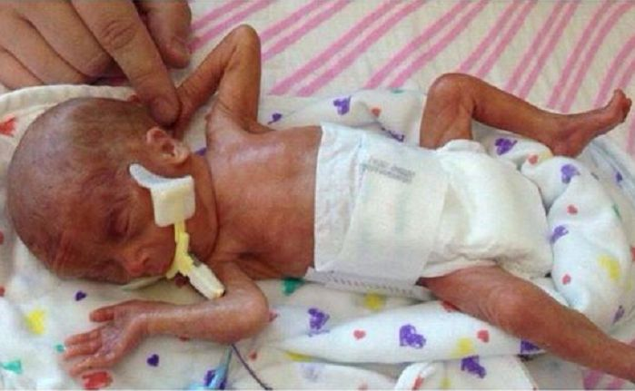 Рожденные в 36 недель фото ребенка
