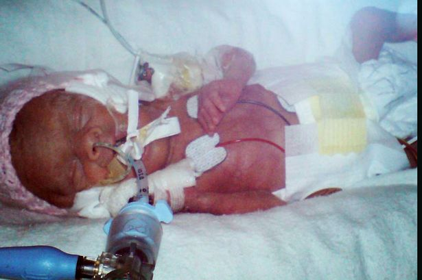 Ребенок рожденный на 23 неделе беременности фото