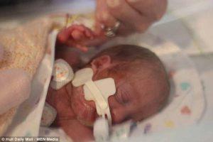 Девочка родилась через две недели после брата-близнеца и выжила