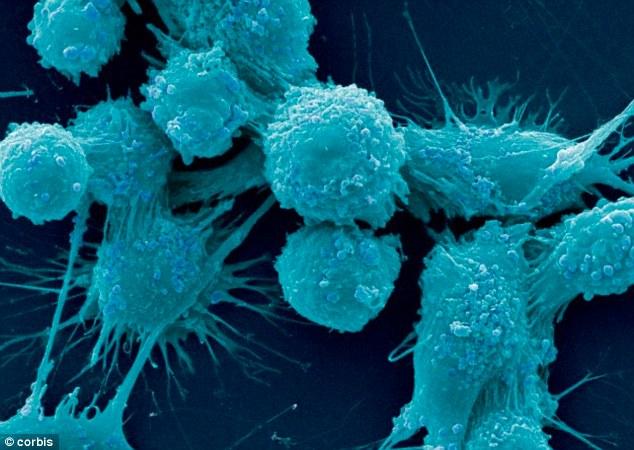 Рак предстательной железы (на фото под микроскопом) - вторая основная причина смерти от рака у мужчин