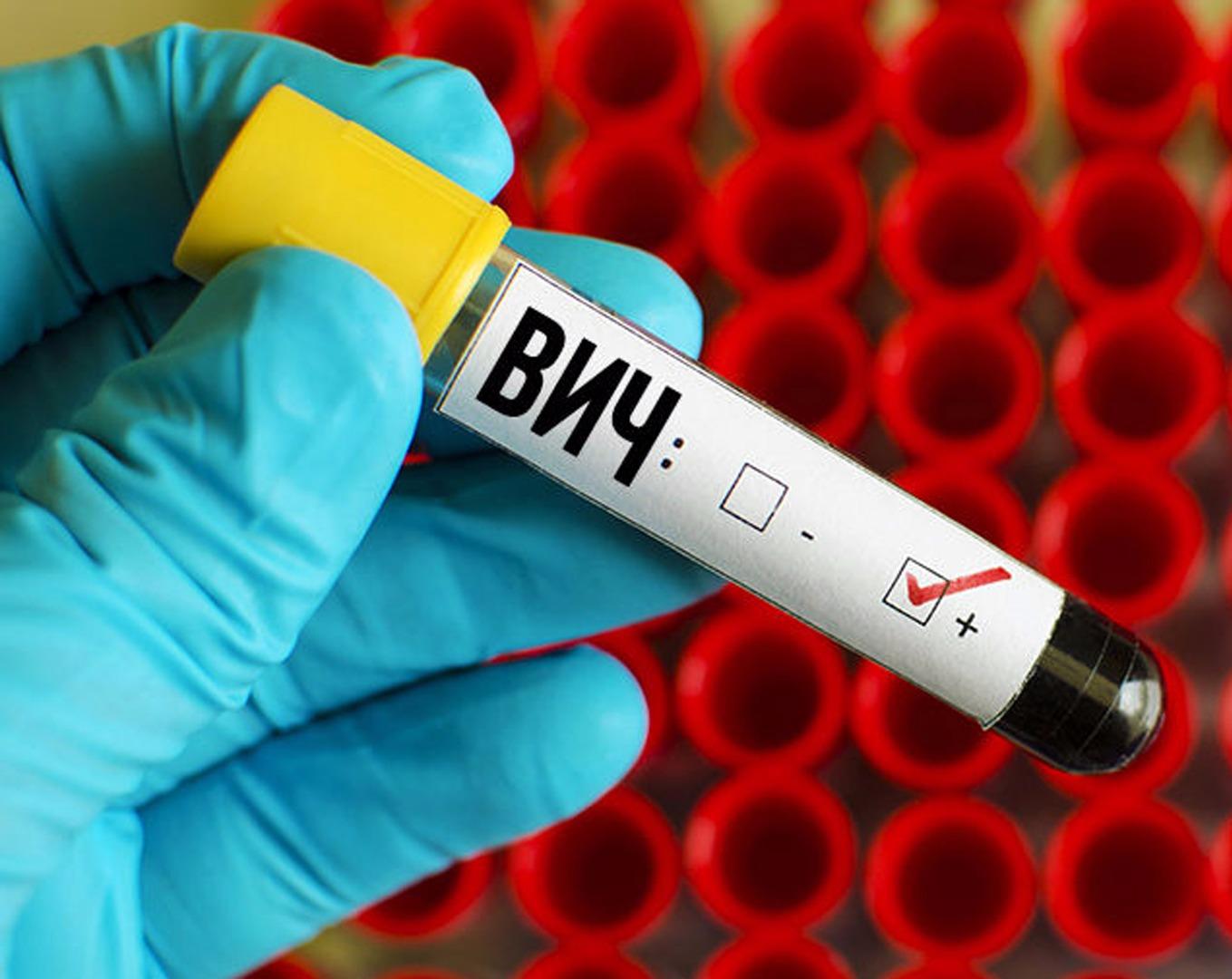 О некоторых аспектах уголовной ответственности за поставление в опасность заражения вирусом иммунодефицита человека